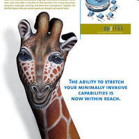 giraffe-ethicon-endo-surgery