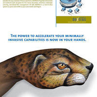 leopard-ethicon-endo-surgery